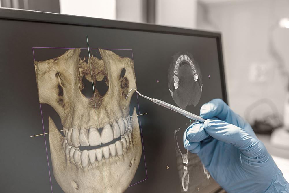 DVT Röntgen und 3D Röntgenbild Langen