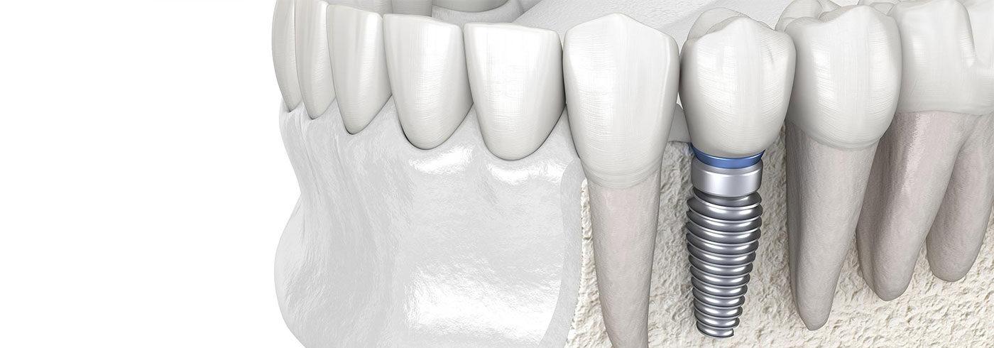 Implantologie in Langen